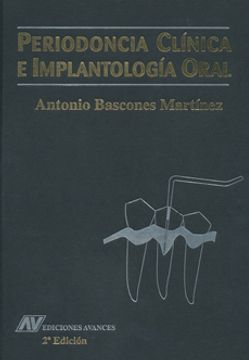 portada PERIODONCIA, DIAGNOSTICO Y TRATAMIENTO DE LA ENFERMEDAD (2ª ED.)